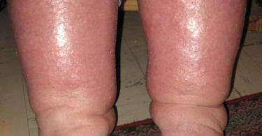 Edema - Excess Fluid In The Body Tissues