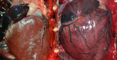 Enlarged Heart - Cardiomegaly