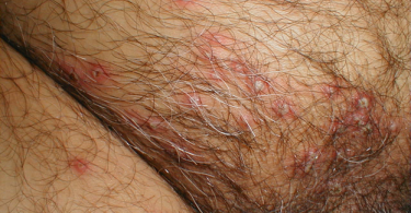 Genital Herpes - Sexually Transmitted Infection