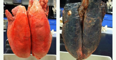 Lung Cancer - A Cancer Type