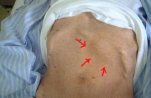 Chronic-Myelogenous-Leukemia-300x224