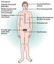 Klinefelter Syndrome