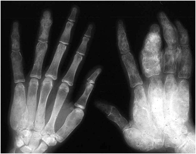 Fibrous Dysplasia Causes, Symptoms, Diagnosis and ...