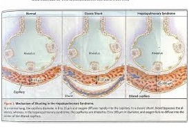Hepatopulmonary Syndrome