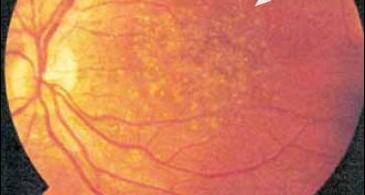 hyperoxaluria-and-oxalosis