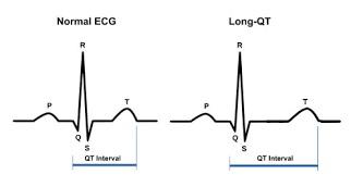 long-qt-syndrome