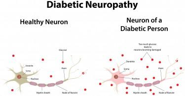 diabetic-neuropathy