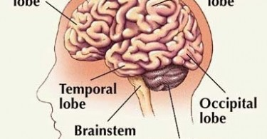 frontotemporal-dementia