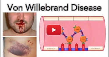Von Willebrand disease