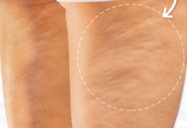 Cellulite Causes, Symptoms, Diagnosis and Treatment